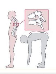 强直性脊柱炎II期