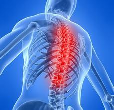 """""""挺起脊梁""""每年救助百名强直性脊柱炎患者"""