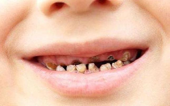 宝宝有蛀牙_牙齿护理不当宝宝会得蛀牙