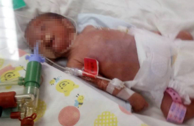 早产龙凤胎俩娃体重仅两斤 巨额治疗费成难题