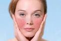 什么是红血丝肌肤?红血丝皮肤护理5个守则