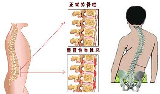调查:强直性脊柱炎生活现状